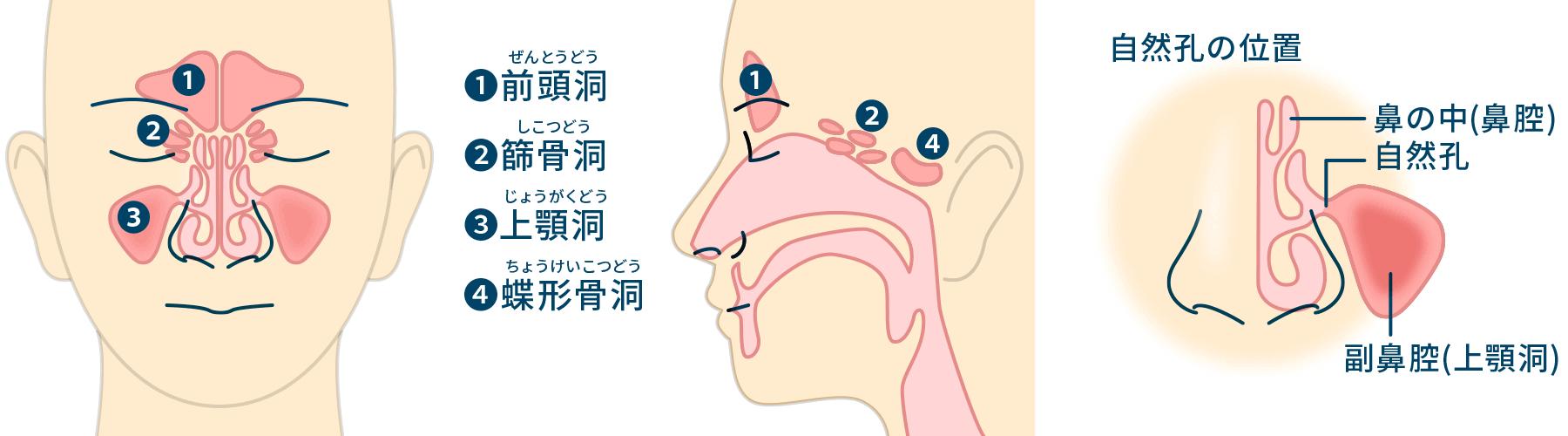 頭痛 蓄膿症